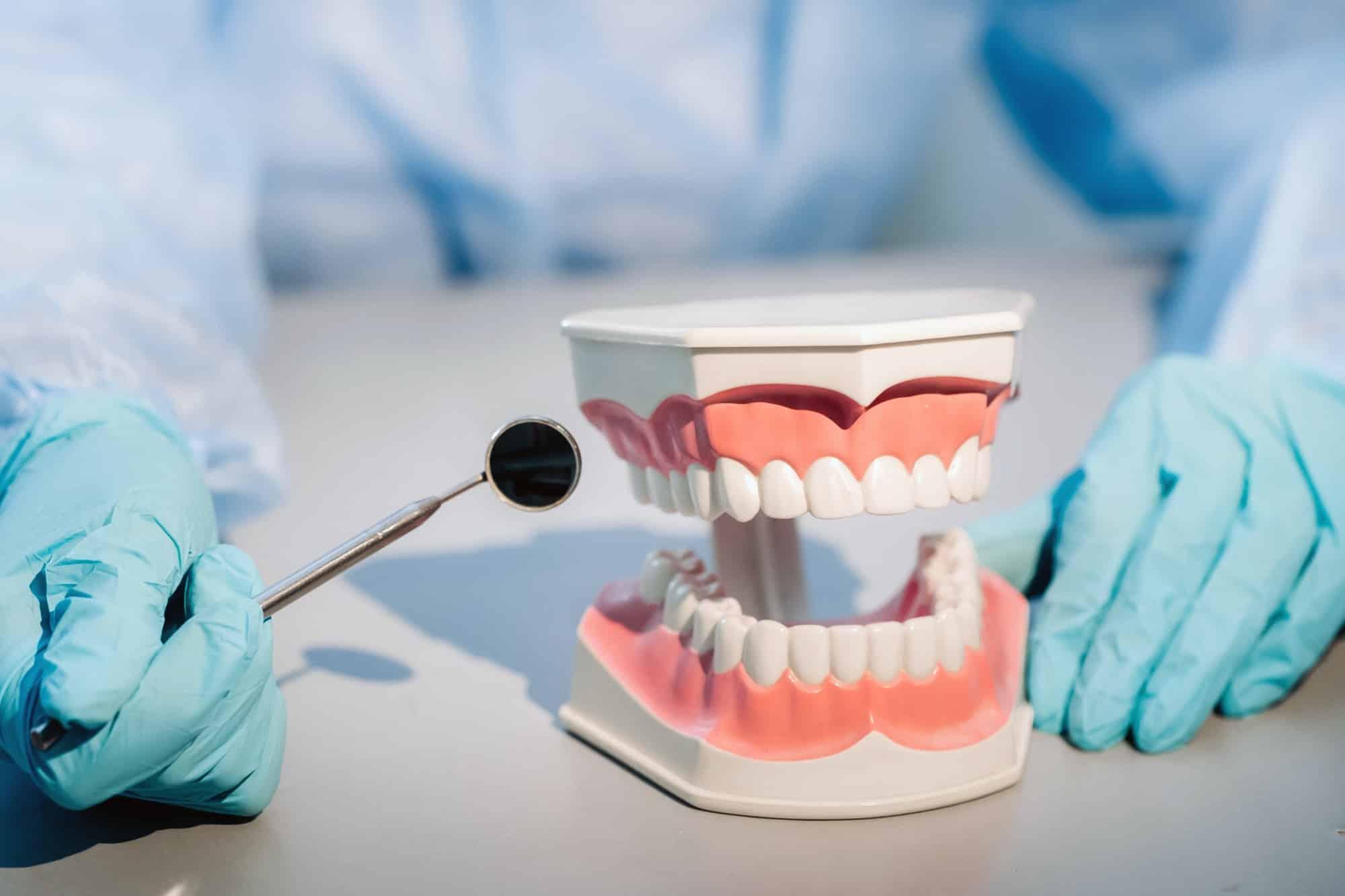 Comment choisir sa mutuelle dentaire